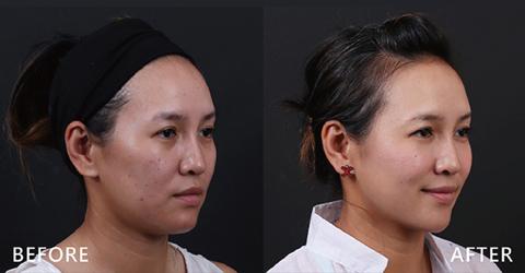 搭配音波拉皮拉提臉部,效果更佳。複合式治療讓女人最重要的一天最美。(效果因個案而異)