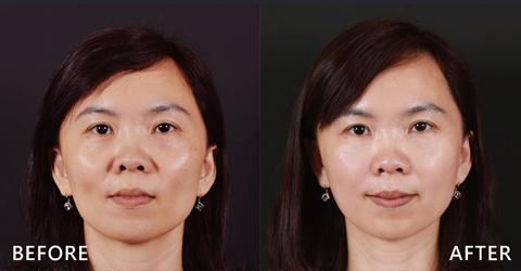 氣質美女經朋友推薦,特別找了盧靜怡院長來做法令紋及臉部凹陷經玻尿酸治療 (效果因個案而異)