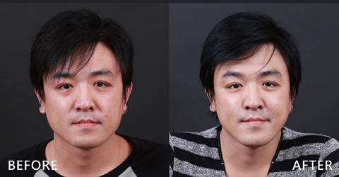 型男電台製作人,經節目推薦關係,找了盧靜怡院長來修修臉,利用玻尿酸調整法令紋、中頰拉提讓臉部部垂垮(效果因個案而異)