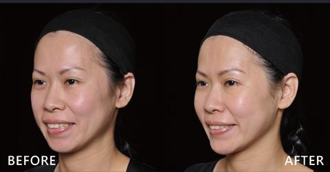 減少臉部凹陷,看起來更年輕(效果因個案而異)
