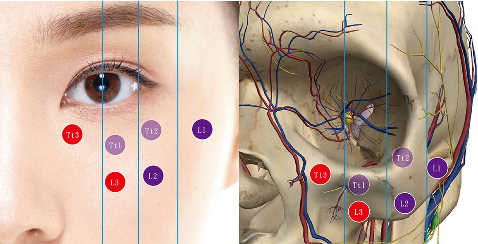 玻尿酸3+3耀眼方程式 注射法