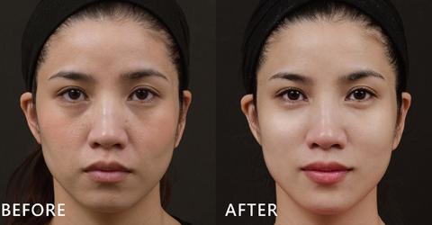 歐美系名模護理師Sherry;盧靜怡院長以玻尿酸改善黑眼圈及臉部凹陷,看起來更有精神,臉部曲線柔和了!(效果因個案而異)