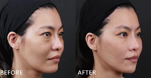 術後臉型的弧度也修飾得更順,下巴線條也變得更美,滿意到Jessica主動要分享心得啦!(效果因個案而異)
