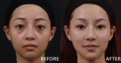 玻尿酸能有效填補淚溝,立馬變電眼。(效果因個案而異)