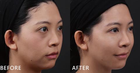 盧靜怡醫師利用2cc的玻尿酸雕塑下巴線條,讓下巴自然地跑出來。現在大家都給她一個讚,在客戶那裡的表現評價也越來越好。(效果因個案而異)