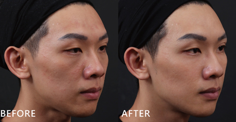 自然修補蘋果肌後,臉型凹陷消失了。現在每每到上課時,總是不斷的和同學們分享來iskin的心得及過程(效果因個案而異)