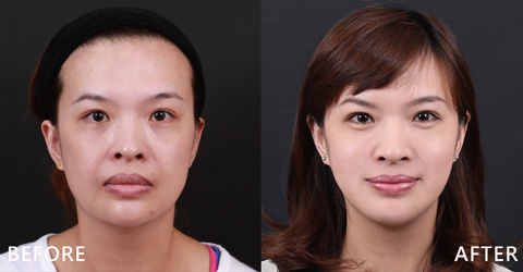 甜心美容師Vicky的法令紋經玻尿酸治療後淡化及淚溝也變淺了,現在在朋友面前更能開心的微笑了,工作也獲得很多好評價。(效果因個案而異)