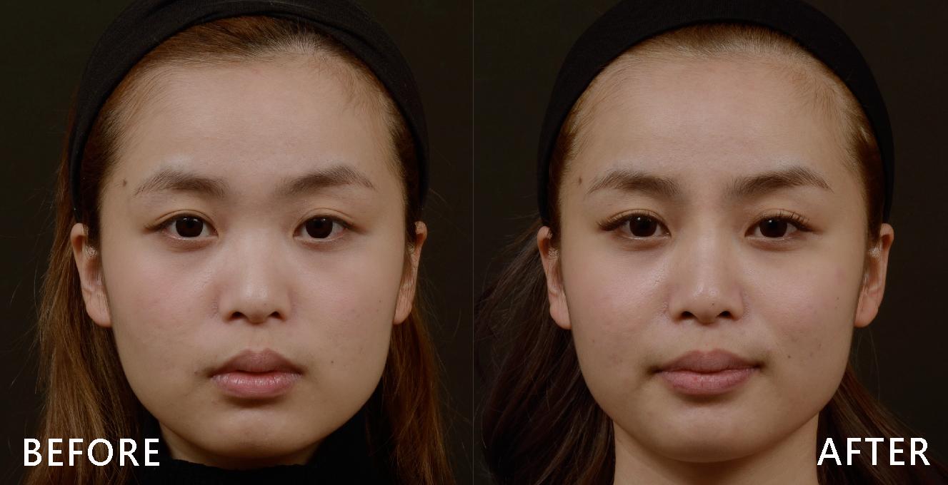 只打只打1cc玻尿酸就感覺臉上多了一些陰影與立體感,兩眼之間的距離更近了。(效果因個案而異)
