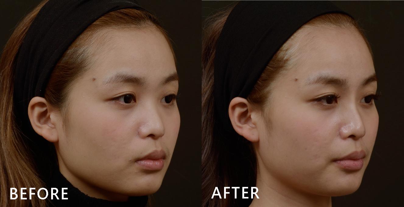 鼻型變好看了,臉型變得立體了,現在只要淡妝自己就能感覺到鼻子自然地跳出來!(效果因個案而異)