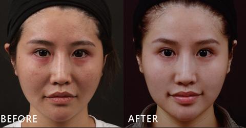 公關Susan原本法令紋明顯、臉型跟唇形都不夠對襯,透過玻尿酸填補後法令紋真的消失了,嘴唇部分變得很勻稱、飽滿。(效果因個案而異)