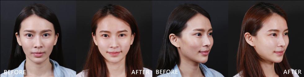 不僅臉色變明亮了,臉頰也不凹陷了。