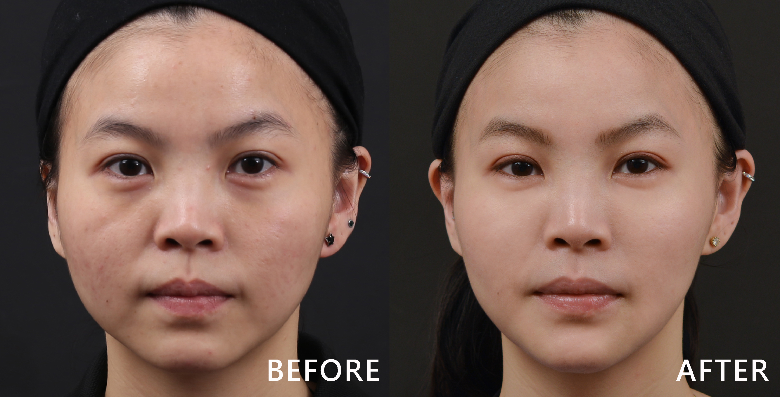 奇蹟電波-GRF之後,個案的淚溝、法令紋、木偶紋均得到改善,眼周細紋減少、膚況變好了、臉部有拉提的效果,下巴的弧度也變美了。(實際效果因個案而異)