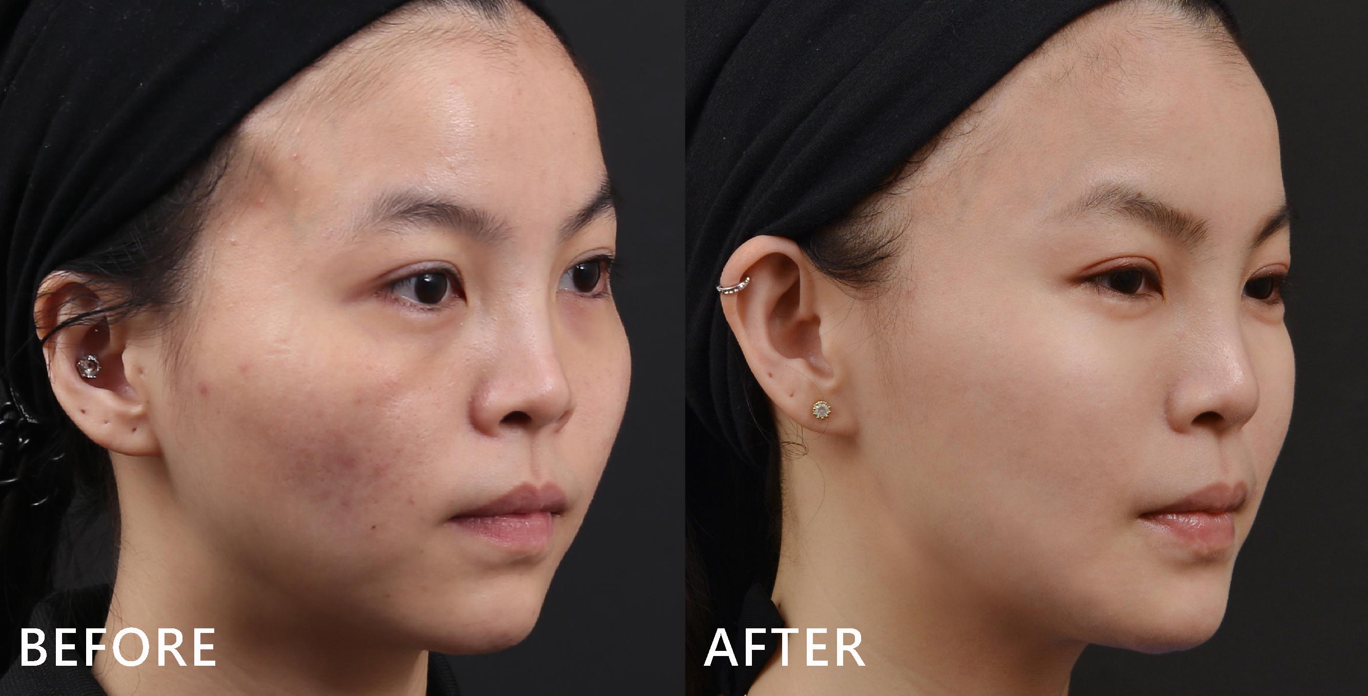 個案側面臉頰的斑塊,在奇蹟電波-GRF之後,具體得到淡化的效果,臉型弧度也變得柔順美麗。(實際效果因個案而異)