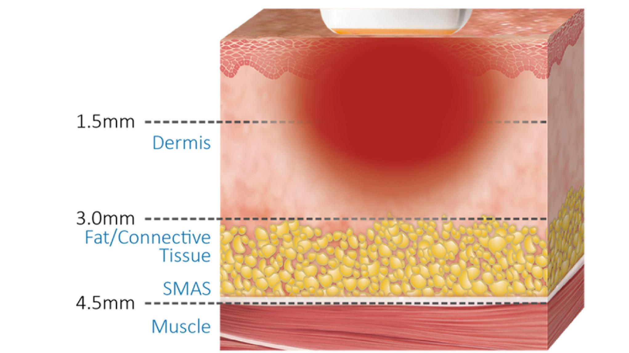 奇蹟電波INTRAcel-GRF使用單極電波加熱皮膚組織,大面積加熱刺激膠原蛋白收縮,使膠原蛋白再生,讓肌膚緊緻、Q彈。
