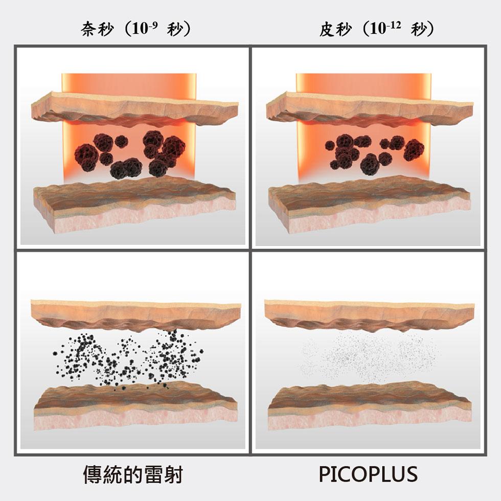 4D皮秒雷射PICO PLUS (蜂巢皮秒雷射)能將色素斑塊擊碎成粉塵,能更快代謝出體外。實際效果因人而異,建議先經由專業醫師諮詢。