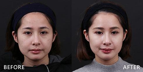 雙頰明顯的黑斑及膚色不均分布,同時合併泛紅痘印的困擾,在經由4D皮秒雷射治療後,改善暗沉、膚色不均,淡化紅色痘印及改善黑斑的問題。