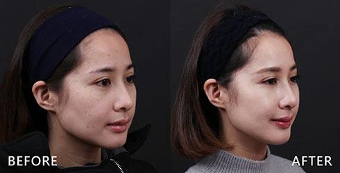 較為嚴重右側臉頰,經由4D皮秒雷射治療後,重新找回白皙自信,再也不需大量上妝遮瑕了。