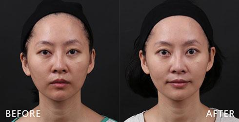 利用皮秒雷射保養臉部肌膚,讓泛紅、色素沉澱的問題不再,有效使肌膚減齡。實際效果因人而異,建議先經由專業醫師諮詢。