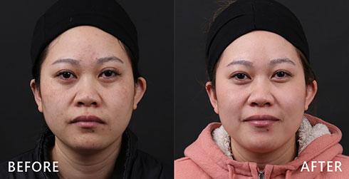 針對兩頰顴骨上的黑斑,經過4D皮秒雷射治療後,可以達到良好除斑效果;另外治療部分泛紅、色素沉澱的痘印,並且術後肌膚增亮,改善色素不均的問題。實際效果因人而異,建議先經由專業醫師諮詢。