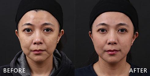 同樣是顴骨部分有黑斑困擾,合併臉上有色素沉澱及小細紋,經過4D皮秒雷射處理後,臉部沒有斑斑點點的困擾,小細紋及色素不均的問題一同改善。實際效果因人而異,建議先經由專業醫師諮詢。