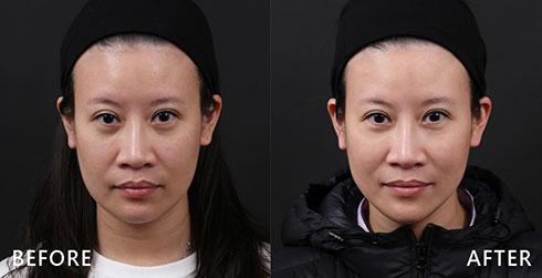 泛紅、毛孔粗大的頰部利用4D皮秒雷射治療,術後得到良好改善,臉色明亮度也提升許多。實際效果因人而異,建議先經由專業醫師諮詢。