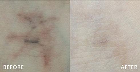 皮秒雷射將刺青殘存色素藉由精準能量擊碎,色素能夠由斑塊擊碎變成粉塵,在透過體內的巨噬細胞掃除一空。實際效果因人而異,建議先經由專業醫師諮詢。