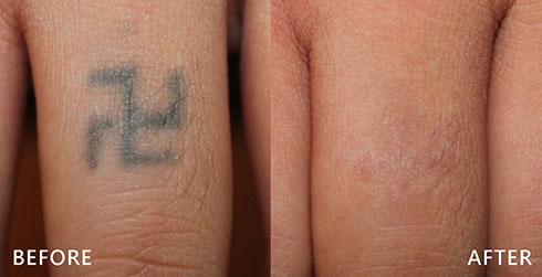 黑青色刺青也能透過皮秒雷,全面掃空。皮秒雷射速度快,雷射能量只需過去的一半,就能加速擊退黑色素,不會造成不必要的熱傷害。實際效果因人而異,建議先經由專業醫師諮詢。