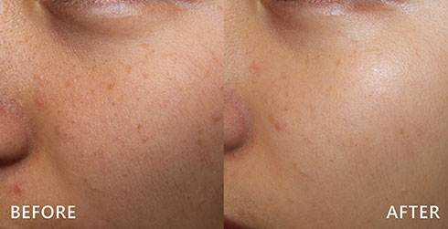 臉部深淺不一的斑點,利用皮秒雷射(又稱蜂巢皮秒雷射)將惱人的肝斑、雀斑全面掃斑,術後不易紅腫且修復期短,對於皮膚緊實、亮白有很好的效果。實際效果因人而異,建議先經由專業醫師諮詢。