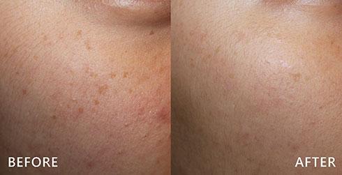 斑點合併臉部泛紅,利用皮秒雷射,得到妥善處理。淡化斑點,改善膚色不均的問題。實際效果因人而異,建議先經由專業醫師諮詢。