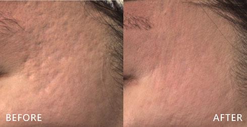 臉上的痘疤凹痕利用配合皮秒雷射處理,刺激膠原蛋白增生,由內到外肌膚徹底更新。實際效果因人而異,建議先經由專業醫師諮詢。