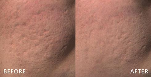 凹痕與痘疤、毛孔粗大透過皮秒雷射,清楚看見肌膚復原的效果,術後治療處更白皙,膚質較術前平滑。實際效果因人而異,建議先經由專業醫師諮詢。