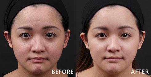 兩頰有較明顯的泛紅問題及小痘疤,還有痘痘復原後所留下的色素沉澱,所以選擇能綜合治療的4D皮秒雷射,讓膚質重新回到良好狀態。