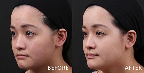 從側頰可發現除了泛紅問題外,還有明顯的血管紋路,也能透過4D皮秒雷射處理,達到美白嫩膚的效果。