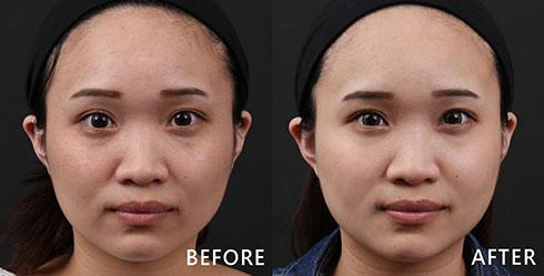 零碎的顴骨黑斑與細紋問題,還合併暗沉膚色問題,經由4D皮秒雷射治療後,膚色明顯比之前亮了一個色階,看起來更有精神。