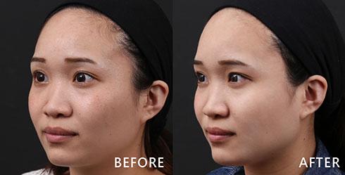 鼻翼兩側、眼下部分小細紋,透過4D皮秒雷射,更有效率改善問題。