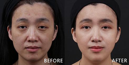 不愛防曬導致黑斑叢生、額頭兩側的明顯泛紅痘印以及暗沉膚色,讓整體臉色看起來疲苦勞累,顯得很沒精神。利用4D皮秒雷射提亮膚色、改善斑點,術後恢復良好。