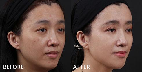 從側臉看更明顯!尤其是發炎型泛紅的痘印,在4D皮秒雷射療程結束後,改善不少,成功逆轉不良膚況。