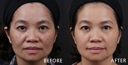 顴骨兩側有綜合型的斑點問題,曬斑及老化而產生的斑點互相交錯,經由醫師建議透過4D皮秒雷射治療,斑點問題淡化許多,膚色也明顯變亮白,術後看起來年輕好多歲。