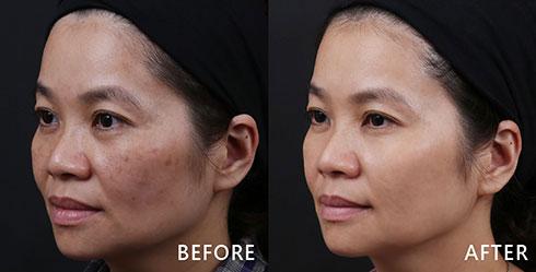 從側臉角度來看,頰側黑斑廣布,會造成視覺上容易有臉不乾淨的錯覺,遠看更顯得臉色黯沉。選擇4D皮秒雷射果真迅速解決綜合型斑點問題。