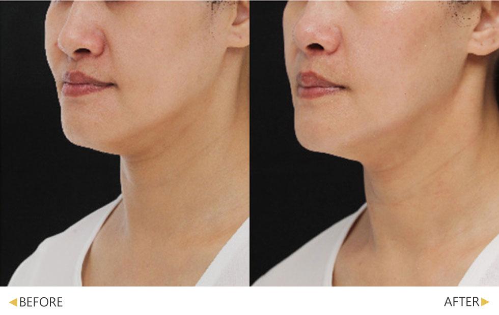 紫鑽探頭提升下垂臉型的支撐力,改善法令紋與下顎線,實現緊緻V小臉。(實際效果因個案而異)