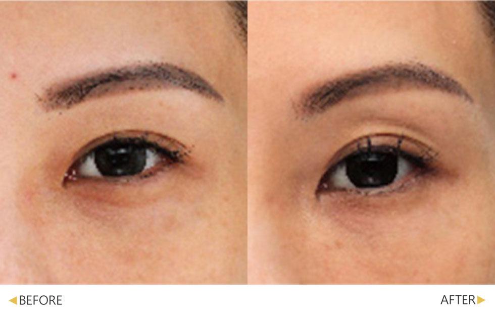 碧眼探頭精準改善眼周老化現象,擊退眼周細紋與鬆弛。(實際效果因個案而異)