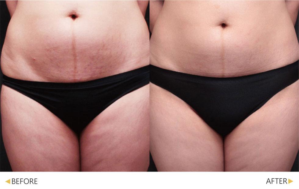 鳳凰電波改善腹部與大腿前側等大面積部位鬆垮肌膚。(實際效果因個案而異)