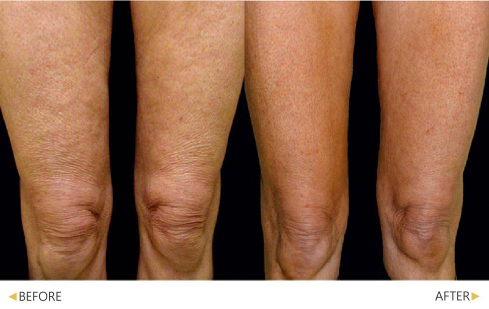 又鬆又皺的大腿肌膚,使用鳳凰電波做改善,還有明顯拉提效果。(實際效果因個案而異)