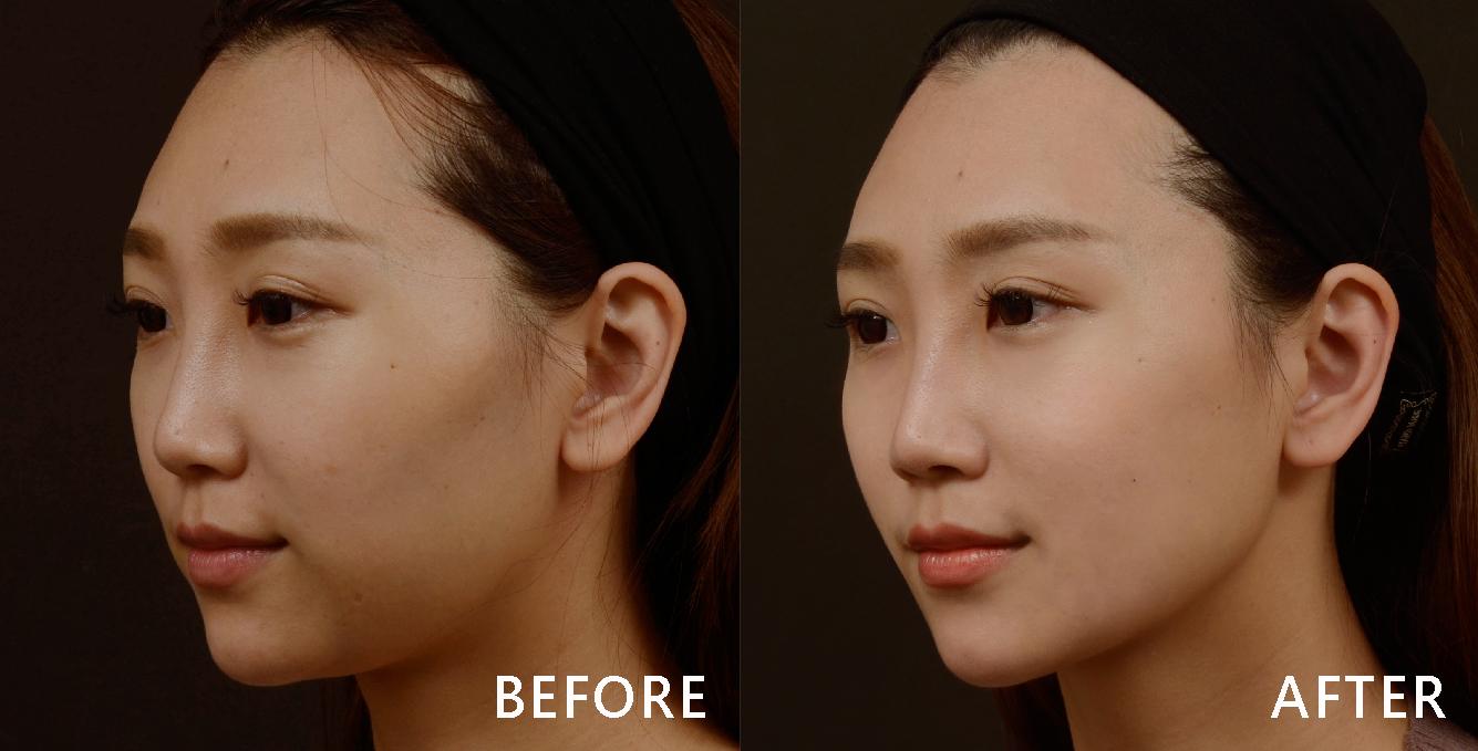 音波的深層拉提,可以刺激皮膚底層膠原蛋白增生與重組,讓下顎線條緊實還能讓皮膚變好喔!(實際效果依個案而異)