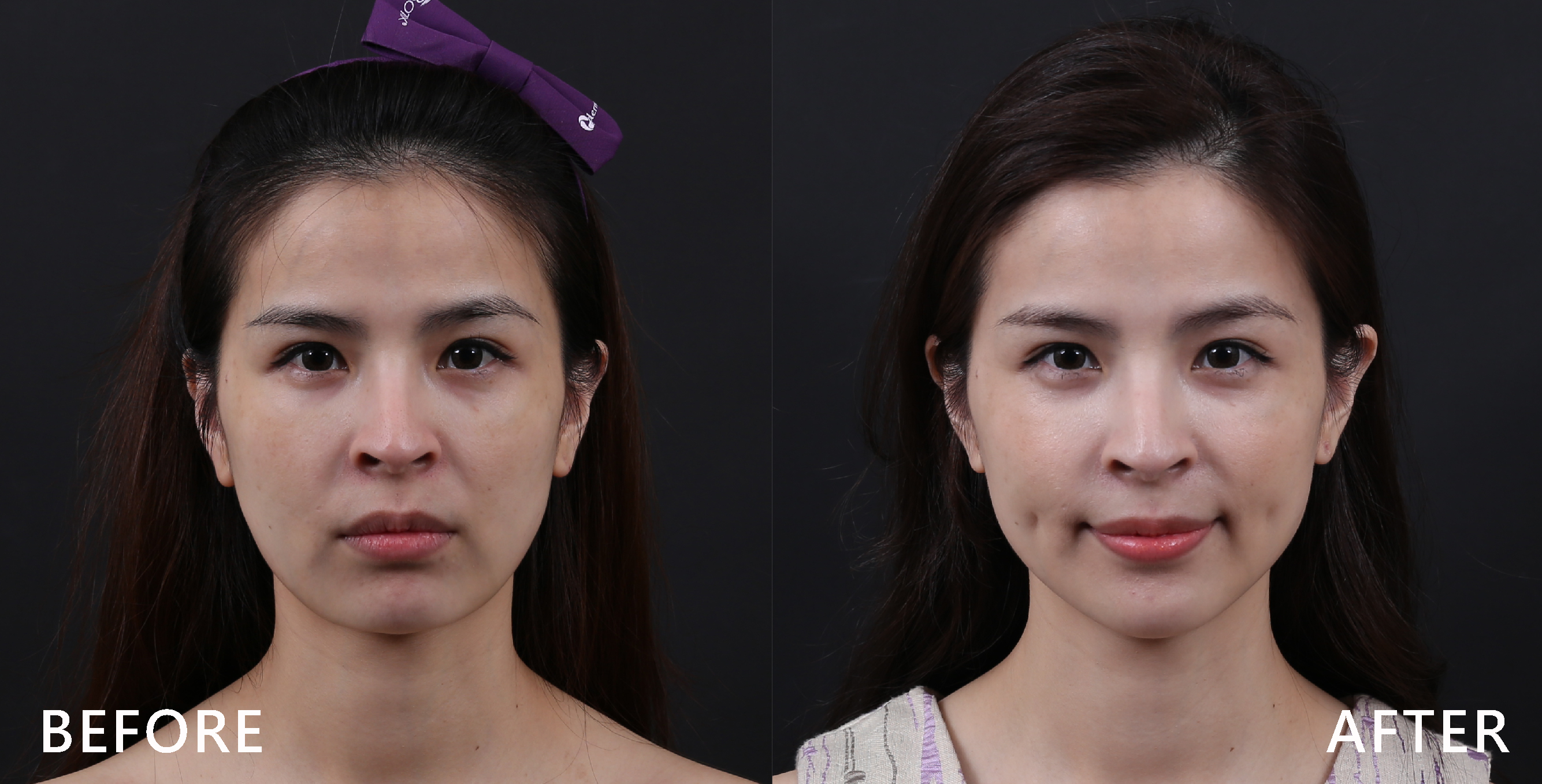 個案臉部原本有淚溝、法令紋、木偶紋的問題,臉頰稍微凹陷,下巴也有鬆弛的跡象,也較不明顯,在iSkin美國極線音波拉皮Ulthera療程後,肌膚明顯感覺較為澎潤,拉提過後下巴弧度較為明顯,臉上細紋也淡化了。 (實際效果依個案而異)