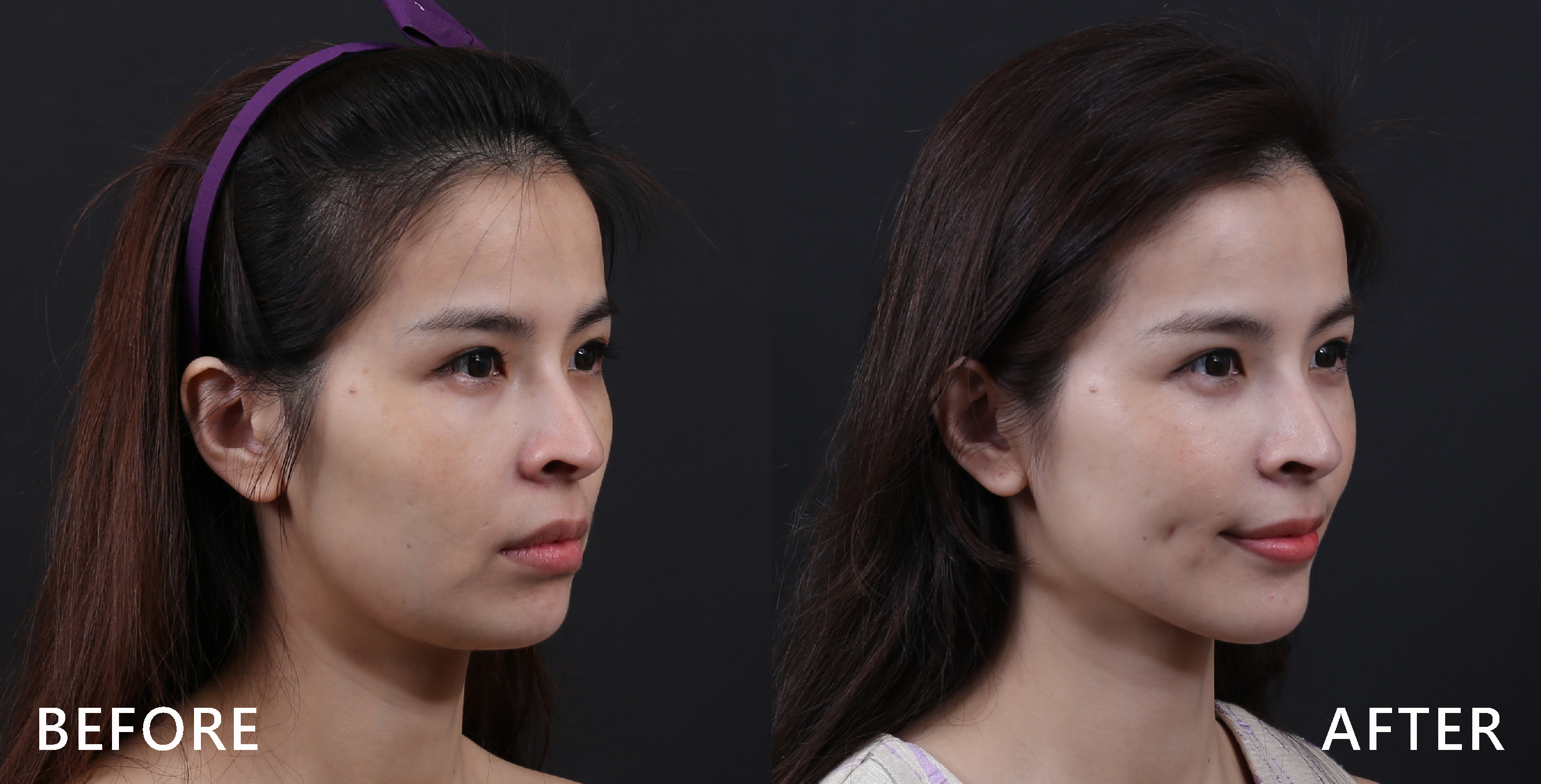 從側面看美國極線音波拉皮Ulthera之後,臉部曲線拉提,小V臉尖下巴出現,也感覺有膠原蛋白增生的年輕膚感,整體感覺變年輕了。 (實際效果依個案而異)