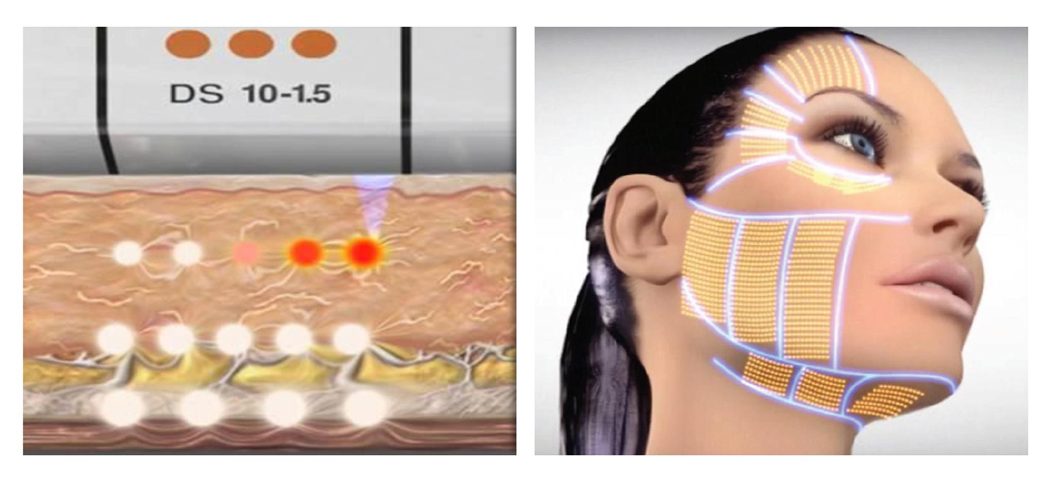 當高能量作用於深層皮膚後,立即會產生熱效應。