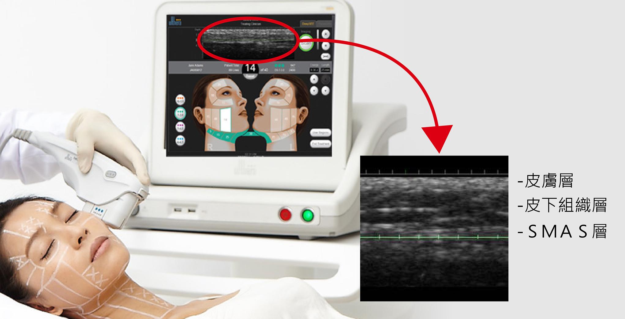 醫師會使用超音波系統的超音波顯像系統去觀察病患皮膚下的情況,並且規劃最佳治療位置。