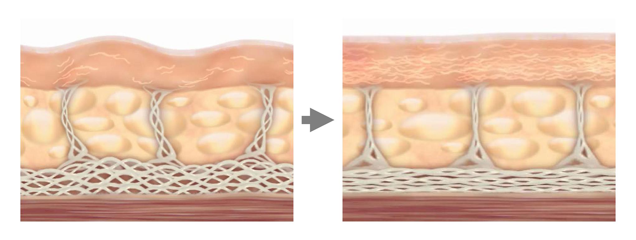 治療之後,隨著時間的推移,原先老化薄弱的膠原蛋白會因為新生而進行重組和強化,接著帶來緊緻和拉提皮膚的效果。