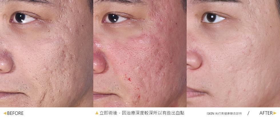 歌手卓義峰困擾許久的嚴重痘疤凹洞與毛孔粗大,在iSKIN接受多次的複合式療程-UP雷射+4D皮秒+玻尿酸做治療,不僅明顯改善凹疤連肌膚也變得更明亮了,造型師都誇讚現在上妝,遮瑕膏可以少用、妝感更自然與服貼。(實際效果因個案而異)